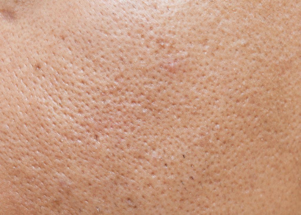 毛孔粗大怎麼改善